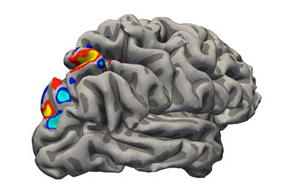 Recovering After A Stroke Unlocking The Brains Secret Strategy